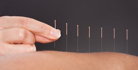 acupuncture-definition-efficacite